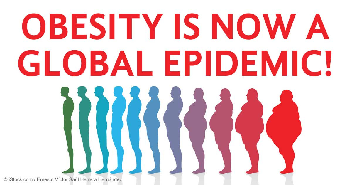 the global problem of obesity Obesity is a critical global issue that requires a comprehensive, international intervention strategy more than 21 billion people—nearly 30 percent of the global population—are overweight or obese 1 1.